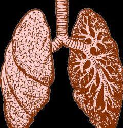 Impact du tabac sur notre sphère ORL